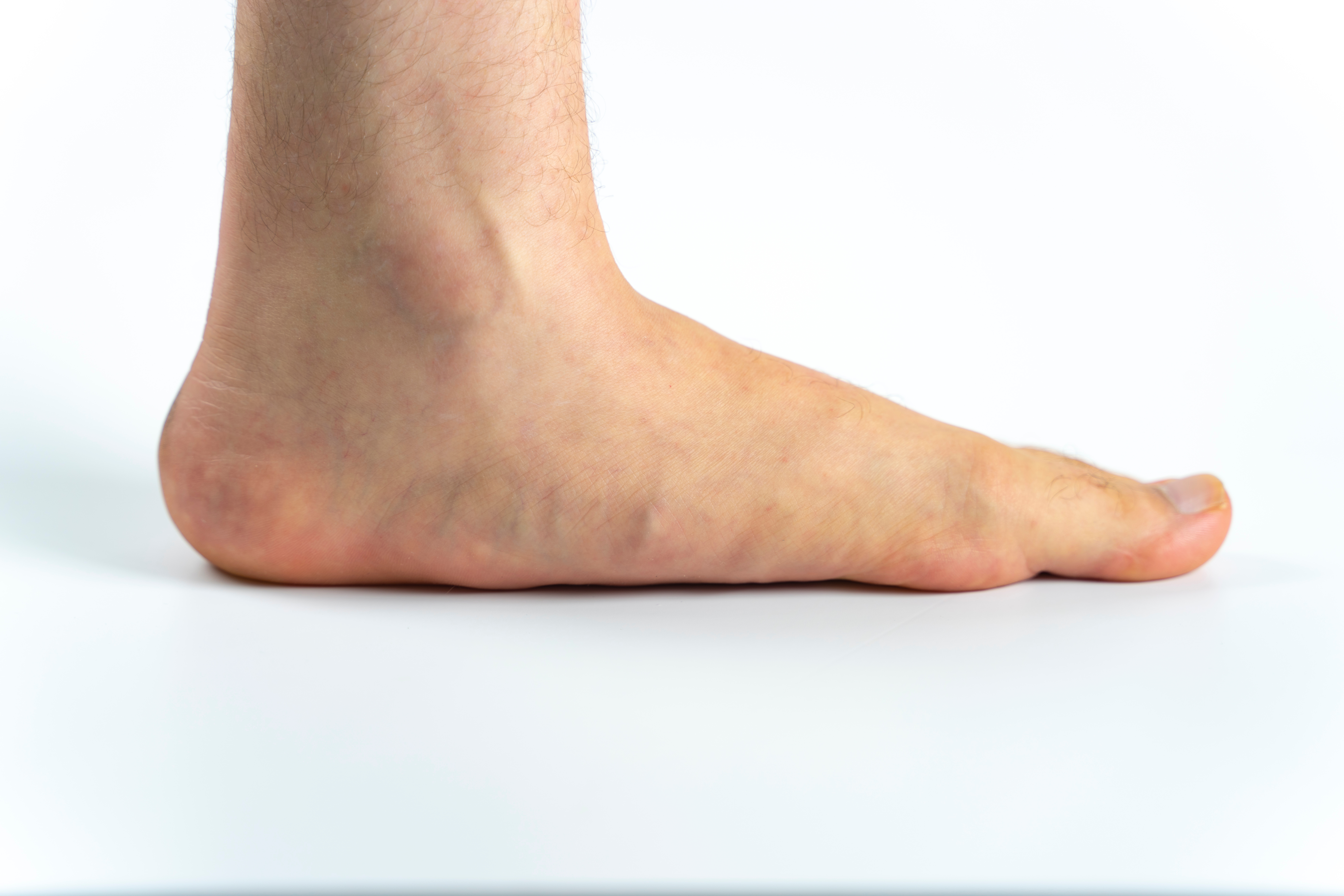 Man's foot with a flat or low arch